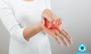 Красные пятна на руке чешутся: причины, лечение, фото
