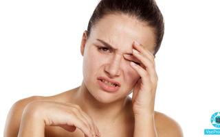 Аллергия, чешутся глаза: что делать, чем лечить, капли и мази