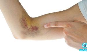 Почему синяки чешутся, причины зуда кожи до гематом, лечение