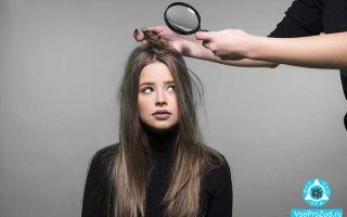 Перхоть и чешется голова: причины зуда, шампуни, народные средства