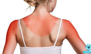 Кожа тела чешется после загара, как снять зуд после солнечного ожога
