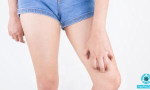 На ноге появились красные пятна и чешутся: фото, причины, чем лечить
