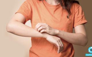 Зудящий дерматоз: симптомы, лечение при атопическом дерматите