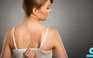 Розовые пятна на коже не чешутся, не шелушатся: фото, причины