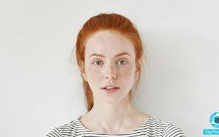 Красные пятна на лице чешутся и шелушатся: как лечить