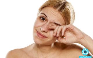 Чешутся глаза и краснеют: причины и лечение