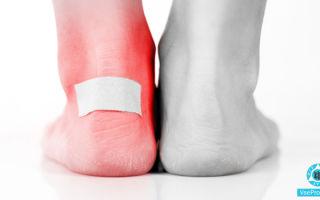 Волдыри на ногах чешутся: почему на стопе появились пузырьки, лечение