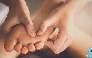 Чешутся ладони и ступни: причины, как лечить зуд стоп и ладошек