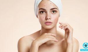 Раздражение на коже чешется, покраснение: причины, лечение