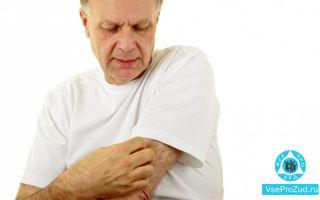 Кожный зуд у пожилых людей: причины старческого зуда, лечение