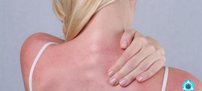 От солнца на коже появились пупырышки и чешутся: лечение сыпи