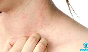 Волдыри на теле чешутся: причины волдырей и зуда на коже, лечение