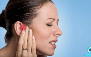 Чешется в горле и в ушах: причины зуда в ушах, болей в горле, как лечить