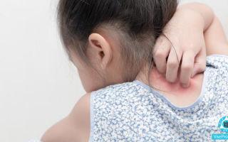 Сыпь на теле у ребенка с зудом и температурой и без них: как лечить