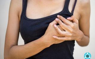 Чешется грудь: причины и способы устранения зуда грудной железы
