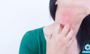 Красные зудящие пятна на теле: что это, фото, чем лечить
