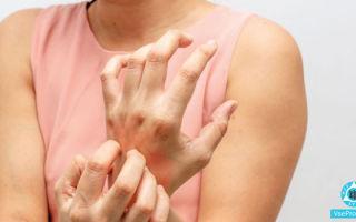 Чесотка на руках: как выглядит, симптомы, лечение