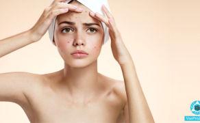 Прыщи на лице чешутся, высыпания на лбу, щеках: причины и лечение