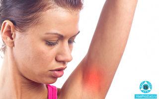 Чешутся подмышки, сыпь, покраснение и зуд: причины и лечение