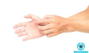 Почему чешутся ладони рук: причины зуда, как лечить