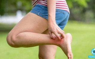 Чешутся ноги, и появляются пупырышки: что это, чем лечить