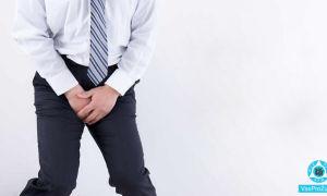 Зуд в интимной зоне у мужчин: почему чешется интимное место
