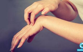 Между пальцами на руках покраснение и чешется: что это, как лечить