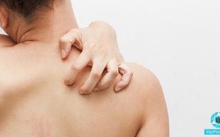 Зуд по всему телу без высыпаний: причины, лечение зуда без сыпи