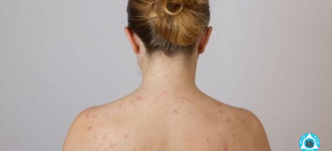 Красные пятна на коже не чешутся, не шелушатся: причины, лечение