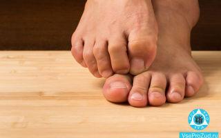 Сыпь на ногах в виде красных точек у взрослого чешется