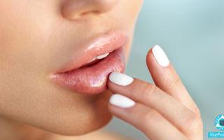 Почему чешутся губы, сохнут, трескаются, шелушатся: лечение