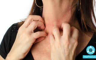 Аллергия на коже, красные пятна чешутся: фото, причины и лечение