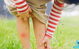 Ребёнок расчесал укус комара: чем обработать расчесы, лечение