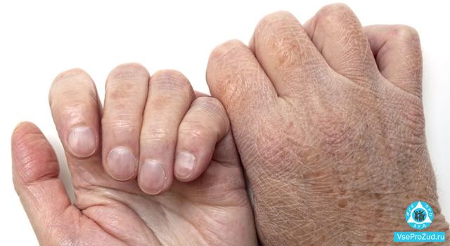 Сухая кожа у пожилых людей