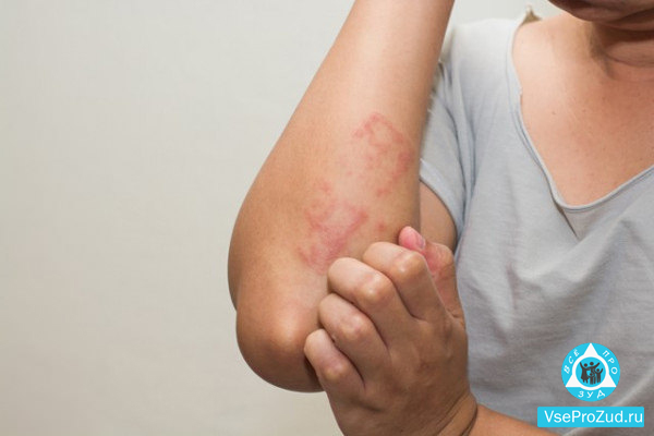 чешутся руки при аллергии