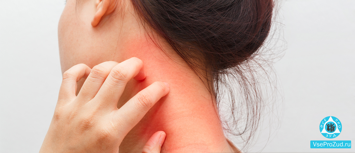 Аллергия на укус