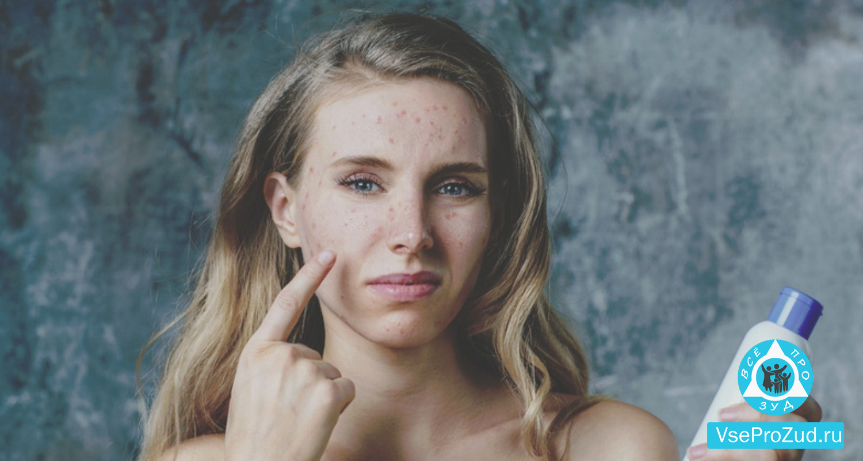 Зуд от аллергии на лице