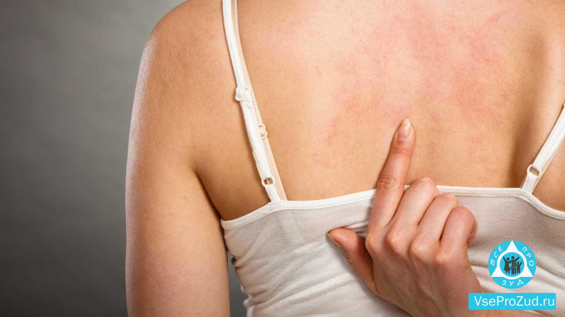 Покалывание по всему телу – это тревожный симптом или норма? Причины и лечение при появлении покалывания по всему телу - Автор Екатерина Данилова