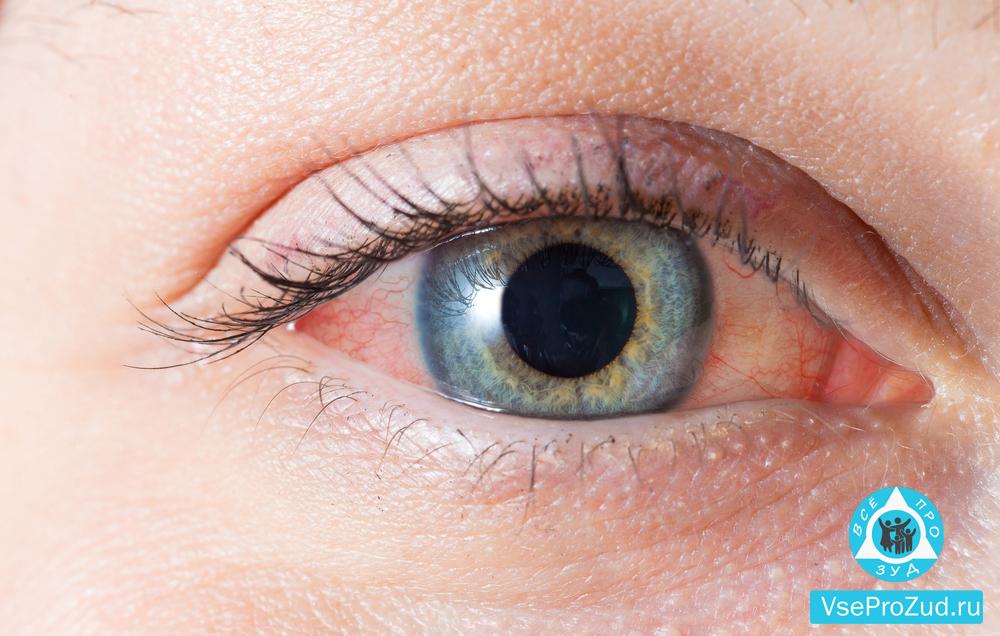 Зуд и покраснение глаза