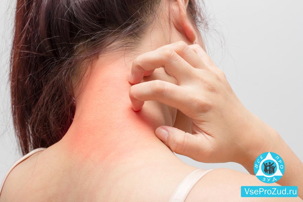 Аллергия на коже