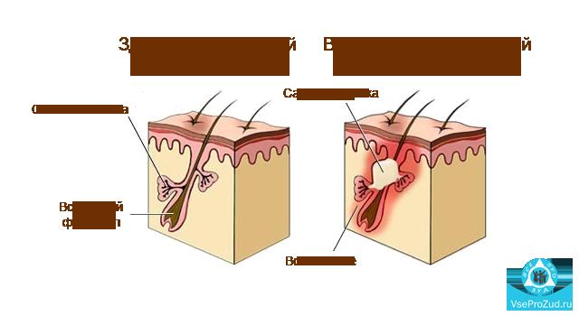 Себорея