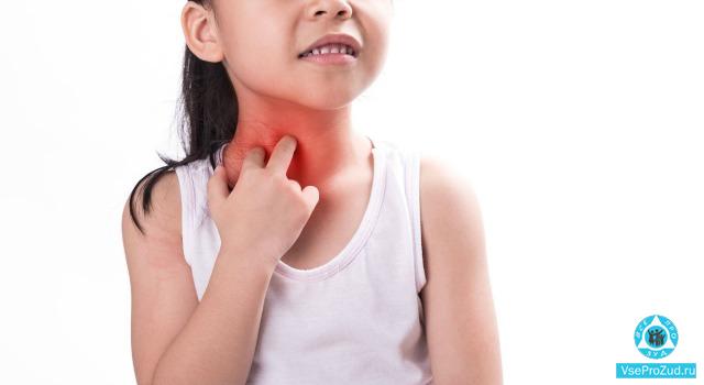 Сыпь на теле у ребенка с зудом
