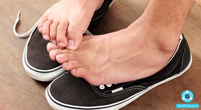 Грибковые поражения кожи