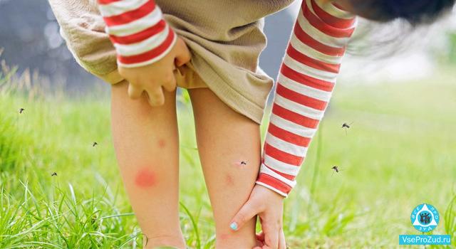 ребёнок расчесал укусы комара